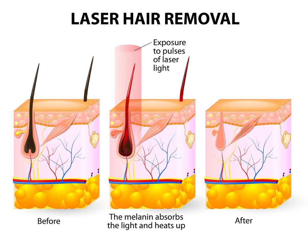 laser hair removal scientific
